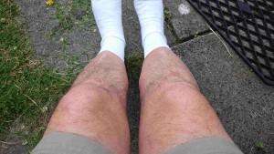 Geoff Nelder's short fat hairy legs
